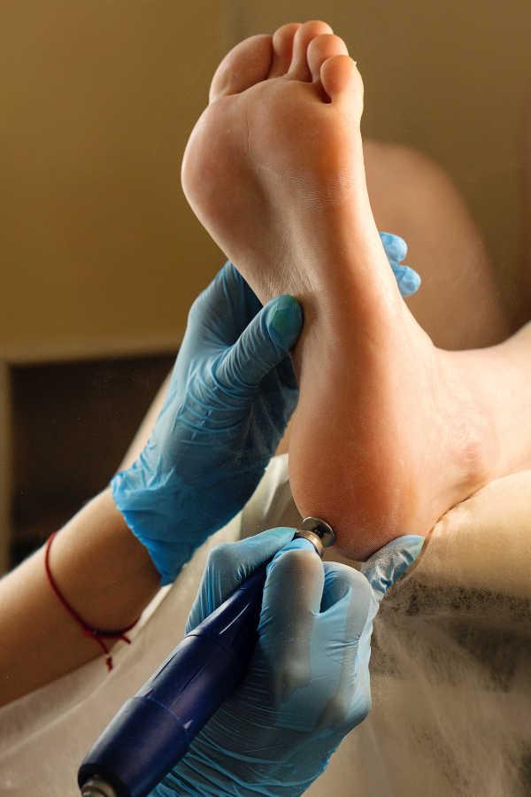 corpo trattamenti piedi